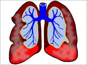 zapalenie płuc spojówek wścieklizna choroby