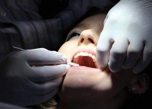 dentofobia wybielanie zębów stomatolog dentysta zęby stomatolog kamień nazębny