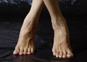 żylaki nogi
