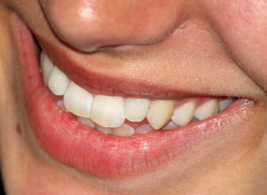 zęby ciekawostki o zębach ząb