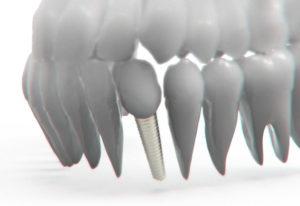 implanty ciekawostki historia zęby dentysta ortodoncja