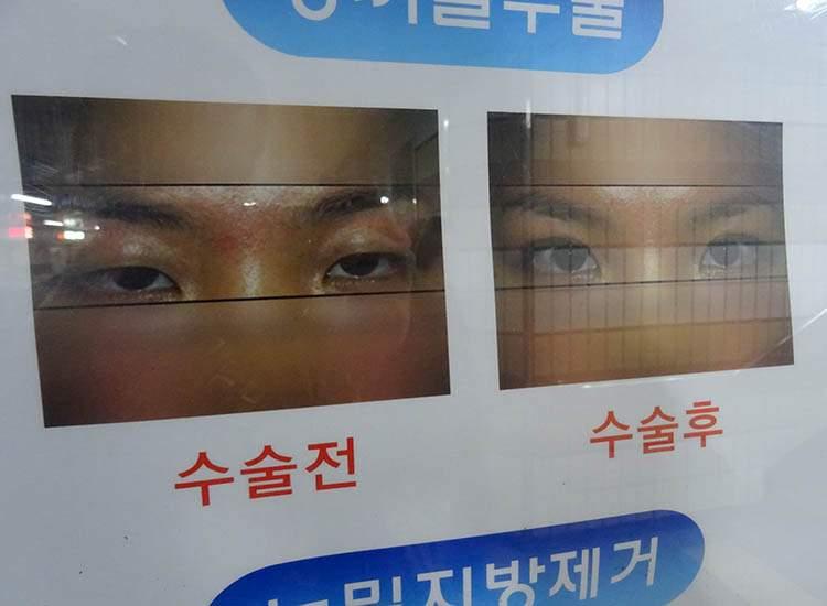 chirurgia plastyczna Korea Południowa poradnik podróże