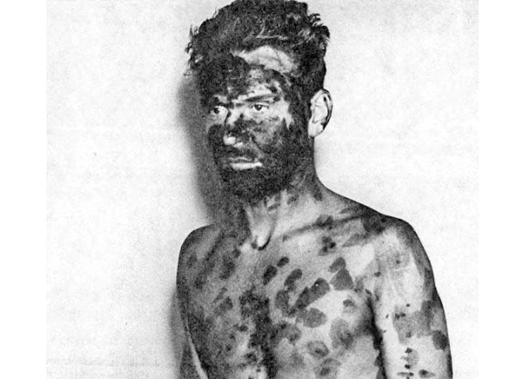 ospa Wrocław 1963 pandemia epidemia ciekawostki